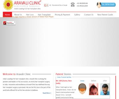 Aravali Hair transplant Institute
