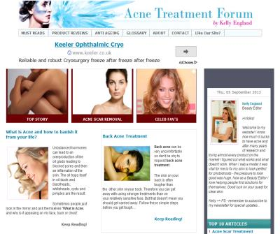 Back Acne | Treatment | Pimples | Acne Treatment Forum